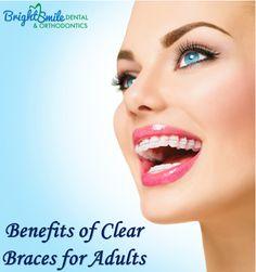 Benefits of Clear Braces for Adults  #Clearbracesinstoneoak #BestTeethWhiteningClinicSanAntonio #BestorthodontictreatmentinSanAntonio #dentalimplants #brightsmile #dentalClinic #CosmeticDentalCare #Gumdiseasecare #Gumdisease