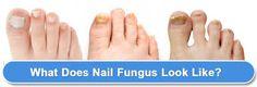 I felt so disgusting until I found this  toe fungus vinegar