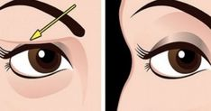 Saggy and droopy eyelids can be really annoying and makeup often looks unattractive on loose skin. Droopy eyelids may even make a person look much older. In general, droopy eyelids are a result of the natural Saggy Eyelids, Drooping Eyelids, Sagging Skin, How To Apply Concealer, How To Apply Makeup, Home Remedies For Acne, Natural Remedies, Face Exercises, Loose Skin