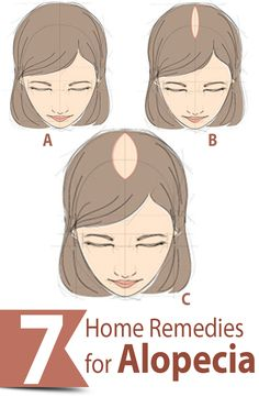 7 Effective Home Remedies For Alopecia