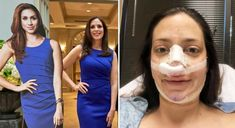 Mum of three spends on surgery to look like Meghan Markle – Dr. Franklin Rose, MD Mum of three spends on surgery to look like Meghan Markle YAHOO NEWS Mum gets surgery to look like Meghan Markle [Video] Meghan Markle Nose Job, Meghan Markle Plastic Surgery, Abc The Bachelor, Celebrity Plastic Surgery, Nose Surgery, Liposuction, Laser Hair Removal, Uk Fashion, New Trends