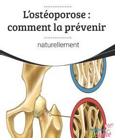 L'ostéoporose : comment la prévenir naturellement   L'ostéoporose est une maladie de plus en plus courante qui affecte les os, et principalement les femmes. Venez découvrir nos conseils pour la prévenir !
