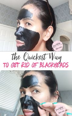 Cheaper Way on How to Get Rid of Blackheads on Nose Fast | DIY Pore Strips - http://nifyhealth.com/cheaper-way-on-how-to-get-rid-of-blackheads-on-nose-fast-diy-pore-strips/