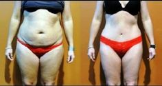 Miracle Diets - cette-recette-de-jus-detox-va-eliminer-les-kilos-superflus-en-quelques-semaines-seulement - The negative consequences of miracle diets can be of different nature and degree. Yoga Fitness, Health Fitness, Fitness Routines, Ginger Wraps, Dietas Detox, Lose Weight, Weight Loss, Military Diet, To Loose