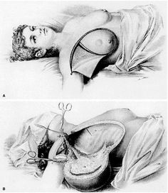 "Fanny Burney had a mastectomy to remove a cancerous breast in She was given a cordial to drink prior to the operation in her living room. ""Oh Heaven! – I then felt the Knife tackling against the breast bone – scraping it! Instruments, Medical History, Interesting History, Breast Cancer Awareness, Macabre, Just In Case, Creepy, The Past, Weird"
