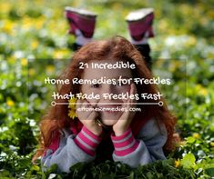 21-incredible-home-remedies-for-freckles-that-fade-freckles-fast