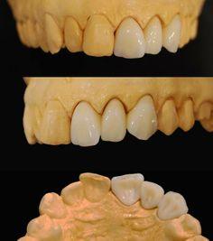Порцелановите корони са перфектно средство за възстановяване на разрушени зъби -> http://www.smilesart.com/porcelain-metal