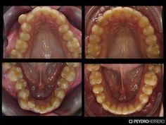 En boca se puede observar la mejora luego de la utilizacion de ortodoncia