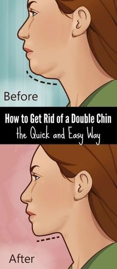 How to Get Rid of a Double Chin the Quick and Easy Way
