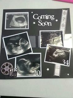 Image result for ultrasound pictures scrapbooking idea #babyscrapbooks
