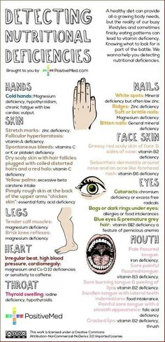 Reference chart on detecting nutritional deficiencies.