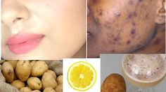 This face mask not only removes black spots, dark spots & acne scars, it also leaves amazing glow on your skin, brightens your skin removes pigmentation and blemishes. Ingredients required : Potato – 1 no.s Lemon – half slice Directions … Read More