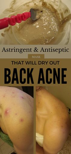 Acne Remedies Astringent and antiseptic mask that will dry out back acne. - Astringent and antiseptic mask that will dry out back acne. Back Acne Remedies, Natural Acne Remedies, Scar Remedies, Sleep Remedies, Cystic Acne Treatment, Back Acne Treatment, Body Acne, Acne Skin, Natural Oils For Skin