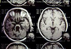 Az ideggyógyászok figyelmeztetnek: nálad jelentkeztek ilyen memóriagondok?