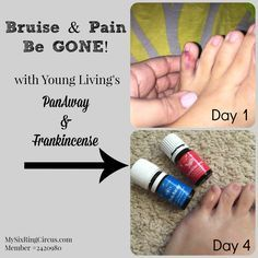During our recent move we were living in a house with boxes for a few weeks. One afternoon I ran my toe into a box, OUCH! I tend to break this one little pinky toe about once a year so it was due t...