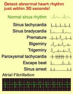 ekg interpretation cheat sheet | EKGs: Intermediate-Advanced Nursing Lessons