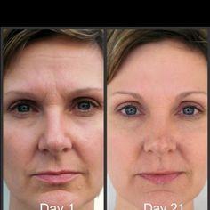 After 21 days of using Nerium! Amazing!! Mariazimmerman.Nerium.com