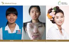 19 years old Malaysian. Severe Acid Burn Scars Stem cell Scar Therapy Burn Scar Contracture Release with Skin Graft and Flap. Facial Plastic Surgery.