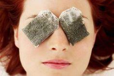 Receita caseira poderosa para eliminar olheiras e bolsas abaixo dos olhos