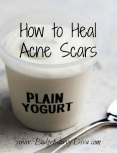 How to Heal Acne Scars To get started make sure that you have 4 teaspoons of lemon juice, 3 teaspoons of plain yogurt, 4 tablespoons of honey, and 1 egg white. Mix all four ingredients together and let sit on your scars for 15 minutes. When the 15 minutes are done, simply rinse.