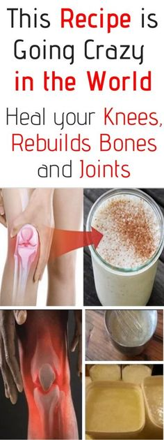 This Recipe is going Crazy in the World! Heal your Knees and Rebuilds Bones and Joints beauty This Recipe is going Crazy in the World! Heal your Knees and Rebuilds Bones and Joints Homemade Beauty Tips, Beauty Tips For Skin, Natural Beauty Tips, Health And Beauty Tips, Health Advice, Beauty Secrets, Beauty Products, Health Care, Vaseline Beauty Tips