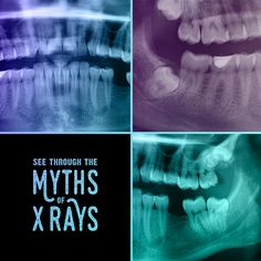 X-RAYS ARE NOTHING but a skel-fie and they are safe!