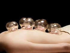 cupping acupuncture combination can bring lots of benefits, even better than when they are used separately. Other than the common benefits of the two, such as relaxation, losing tight muscles and pain relief, the combination can also treat depression, anxiety, and respiratory issues