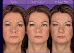 Before & After - Botox Cosmetic