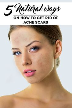 Looking for natural ways on how to get rid of acne scars? Try these five proven tips in acne scar removal without spending a lot of money! http://blog.petuniaskincare.com/5-proven-steps-to-natural-acne-scar-removal…