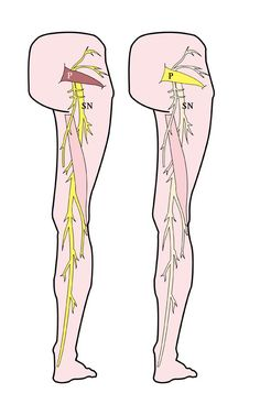 Sciatica and piriformis syndrome create intense pain that can radiate down the leg