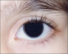Another case of aniridia, the absence of the iris.  There's a tiny strip just at the edge of the pupil.
