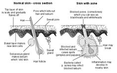 Good article on the causes of acne.