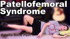 Patellofemoral Pain Syndrome pfps OR Patella Bone Pain