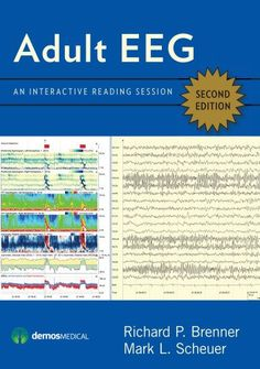 Adult EEG An Interactive Reading Session by Richard P. Digital Textbooks, Trend Analysis, Harvard Medical School, Self Assessment, Teaching Tools, Book Publishing, Book Format, About Me Blog, This Book