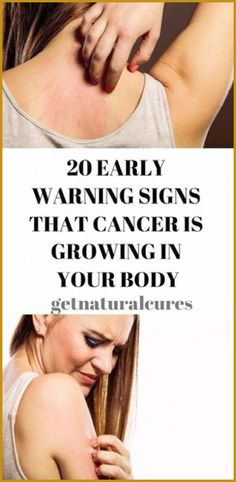 Early Signs That Cancer Is Growing In Your Body – Health Awareness Media Cannabis, Medical Marijuana, Cancer Sign, Lung Cancer, Cancer Cells, 100 Pour Cent, Squamous Cell Carcinoma, Endometrial Cancer, Medicine Book