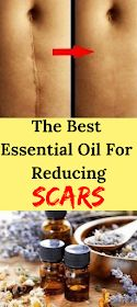 Let Start Slim Today: The Best Essential Oil For Reducing Scars Best Oils, Lemon Essential Oils, Essential Oil Blends, Carrot Seed Essential Oil, Oils For Scars, Roller Bottle Recipes, Helichrysum Essential Oil, Natural Cold Remedies, Frankincense Essential Oil