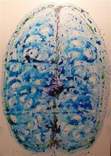 Identifican la capacidad del cerebro para protegerse de los daños de un accidente cerebrovascular