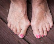 Use these 7 tips to ease your bunions without surgery. Health Remedies, Home Remedies, Bunion Exercises, Foot Exercises, Bunion Surgery, How To Cure Gout, Bunion Relief, Cleveland Clinic, Foot Pain