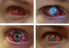 I found 'Zombie Contact Lenses' on Wish, check it out!