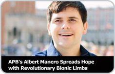 As Seen on Good Morning America: APB's Albert Manero Spreads Hope with Revolutionary Bionic Limbs
