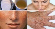 Οι ρυτίδες και οι χρωματικές κηλίδες εμφανίζονται ως αποτέλεσμα της ρύπανσης, του στρες, του ανθυγιεινού τρόπου ζωής κλπ. Συνήθως, αυτό επηρεάζει την αυτοπ
