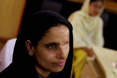 Women attacks muslim acid