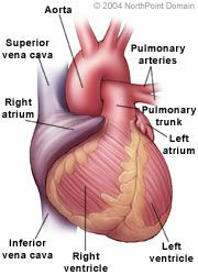 Myocardial infarction 20 infections causing congestive heart failure, Congestive heart failure (treatment with elastic net) Definition - Read More at http://medical-helpful-info.blogspot.com/2012/10/congestive-heart-failure-definition.html