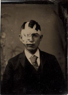 ca. 1875-95, [tintype portrait of a young man with a bandaged head]  via the International Center of Photography