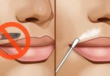 How to get rid of upper lip hair overnight? Upper lip hair present a big problem for women.
