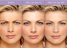 14 Best Botox & Fillers images in 2017 | Botox fillers