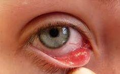 Připravte si obklad, který vás okamžitě zbaví bolesti a unavených očí…