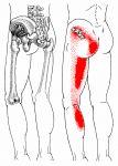 Schmerzen an seitlichem Oberschenkel und Hüfte | The Trigger Point & Referred Pain Guide