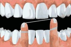 How To #Floss - Lambert Pediatric Dentistry   #NewYorkCity   #NY   www.tribecapediatricdental.com