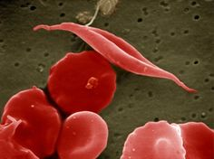 A sickle-cell anaemia blood cell all bent out of shape in comparison to the normal ones around it.